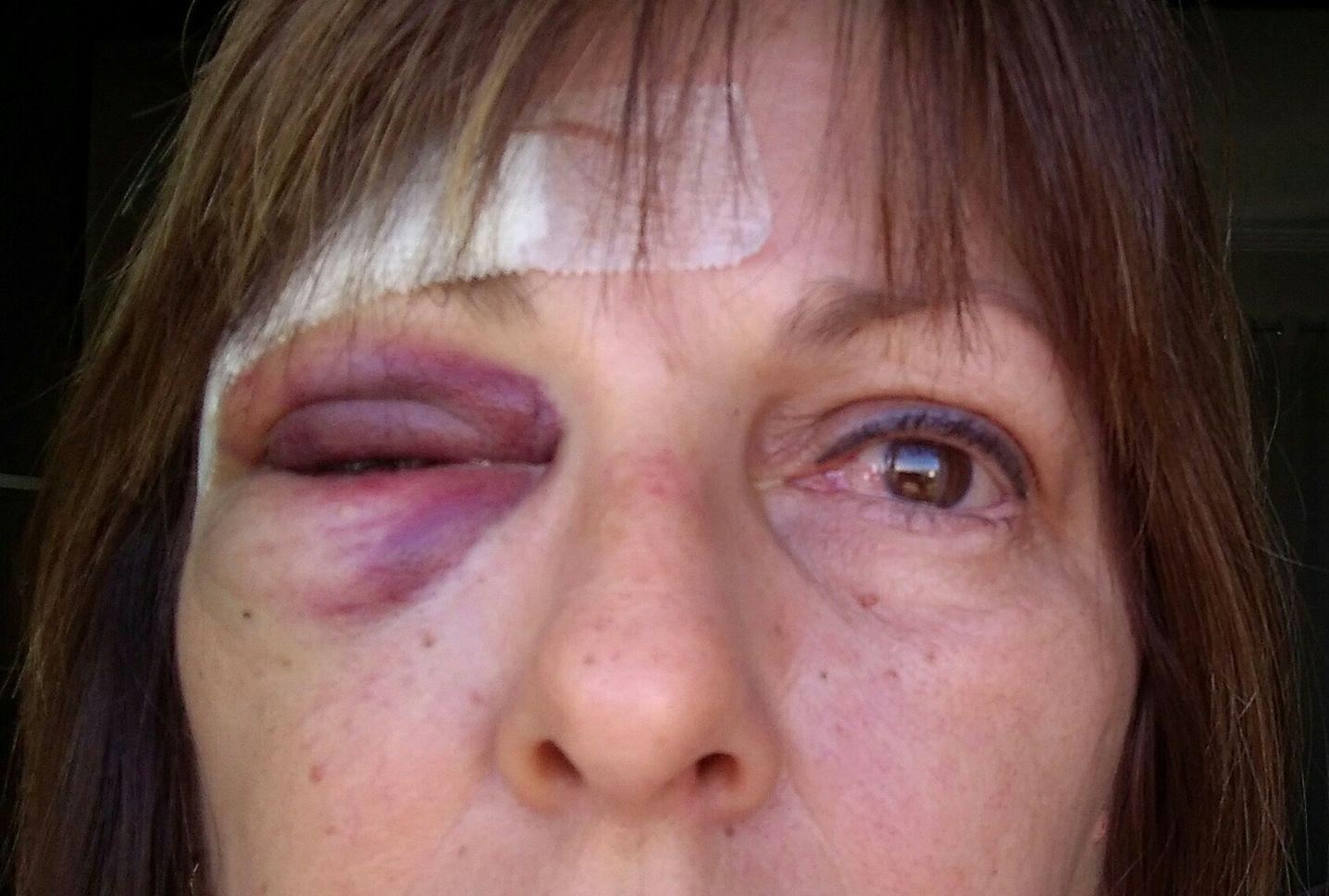 A professora Marcia Friggi ficou ferida após a agressão de um aluno de 15 anos - Reprodução/Facebook/ND