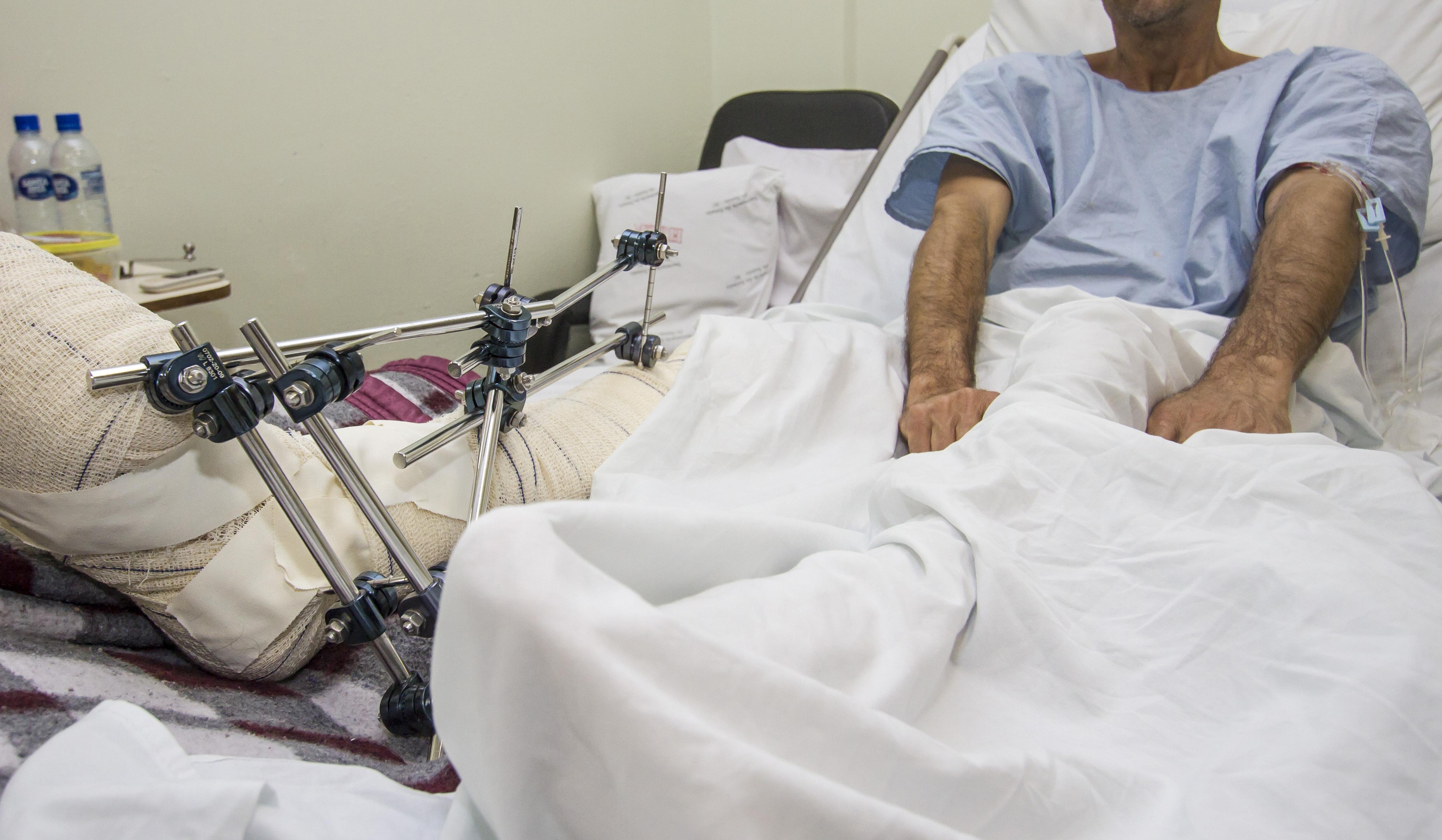 Cerca de 50% dos atendimentos feitos no pronto-socorro do Celso Ramos são de acidentados - Flávio Tin/Arquivo/ND