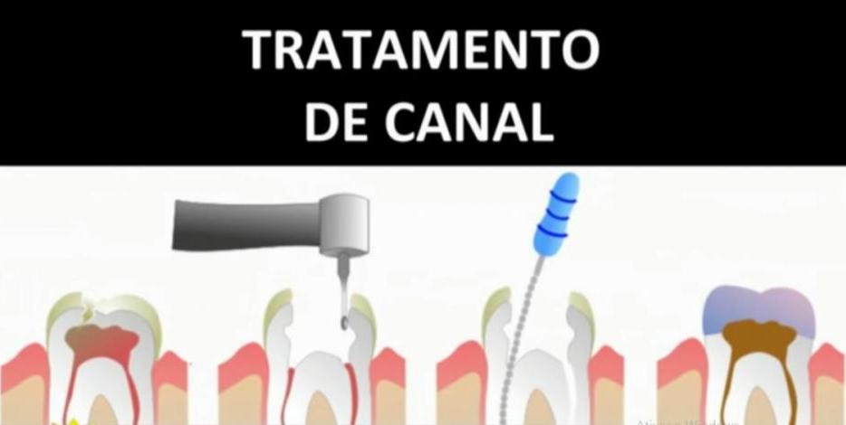 Canal - Divulgação/RICTV