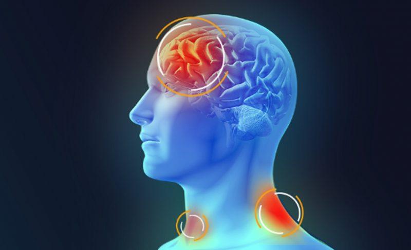 Meningite afeta as membranas que envolvem o cérebro – Dive-SC/Reprodução