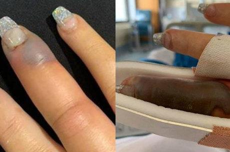 Australiana quase teve dedo amputado por infecção – Reprodução/R7