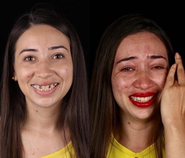 Daniele Souza, de 26 anos, moradora de Nova Olinda, não escondeu a emoção com o novo sorriso - Reprodução/Instagram