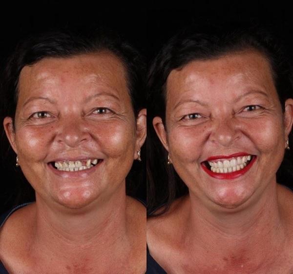 """""""A gente cuida da boca inteira do paciente de acordo com o que ele precisa, com atendimento gratuito"""", afirma o dentista. Dona Célia, de Nova Olinda, adorou. - Reprodução/Instagram"""