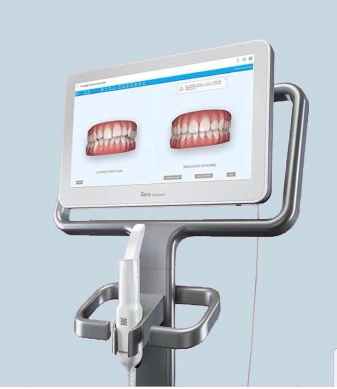 Visualize os resultados antes de começar o tratamento por meio da tecnologia – Foto: Divulgação