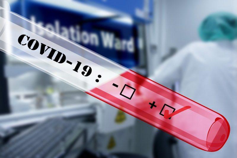 Prefeituras já estão se mobilizando para comprar testes rápidos – Foto: Pixabay/ND