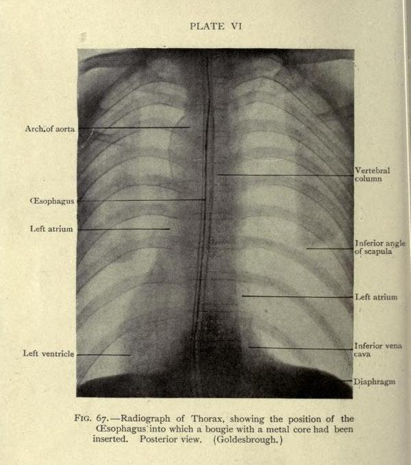 - Internet Archive / California Digital Library/33Giga/ND