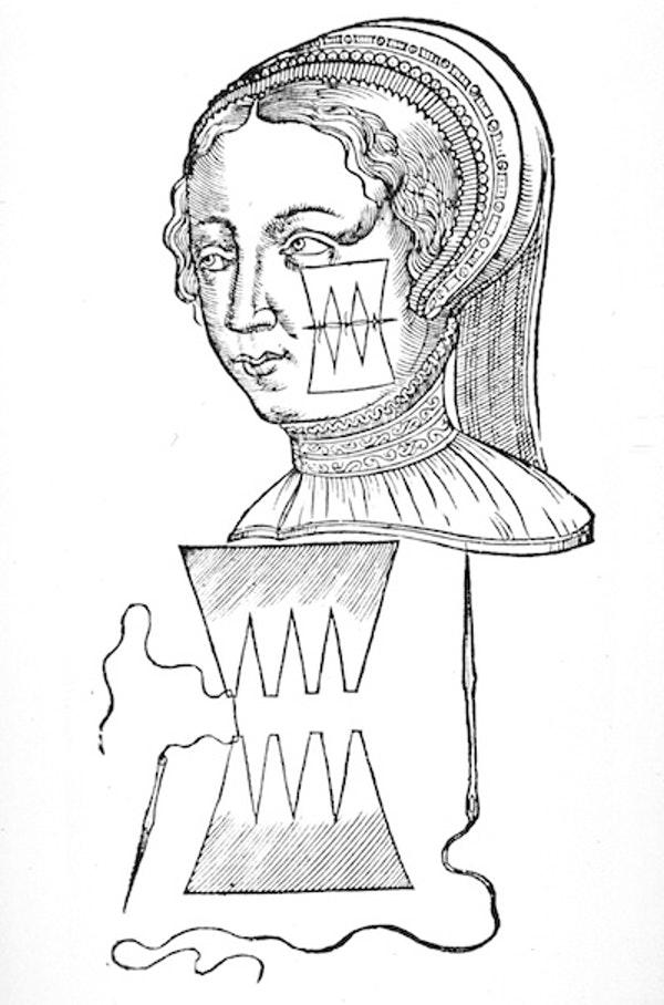 Imagens de próteses mecânicas desenhadas por Ambroise Paré, cirurgião real oficial dos reis Henrique II, Francisco II, Carlos IX e Henrique III - National Library of Medicine/33Giga/ND