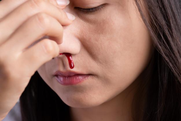 Saiba o que fazer quando tiver sangramento pelo nariz – Foto: Divulgação