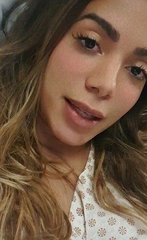 Anitta foi diagnosticada com trombose – Foto: Instagram/Reprodução/ND
