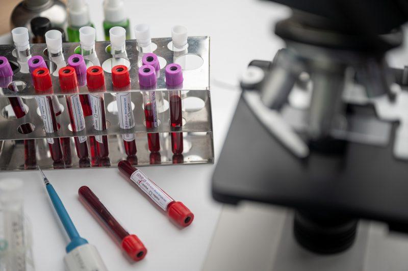De acordo com o boletim epidemiológico da secretaria de Estado da Saúde, foram mais 1.307 casos nesta terça-feira (23) – Foto: Reprodução/Pixabay/ND
