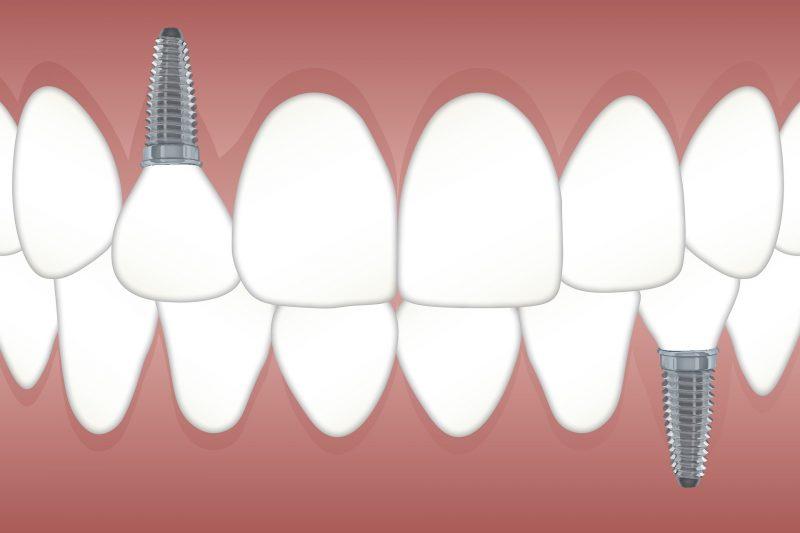 Saiba o que são os implantes dentários – Foto: Divulgação