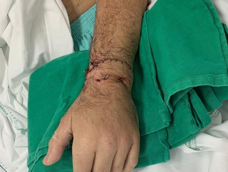 Imagem mostra parte do antebraço e a mão de um home, com marca de pontos de uma cirurgia, sobre um tecido hospitalar verde