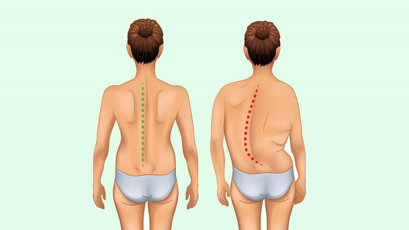 De costas, a coluna pode assumir um formato de C ou S – Foto: Divulgação/ND.