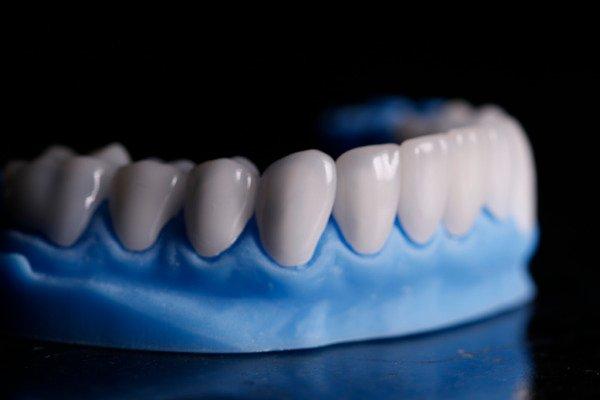 Queda de dentes foi apontada com uma das sequelas em alguns pacientes – Foto: Divulgação/CIR