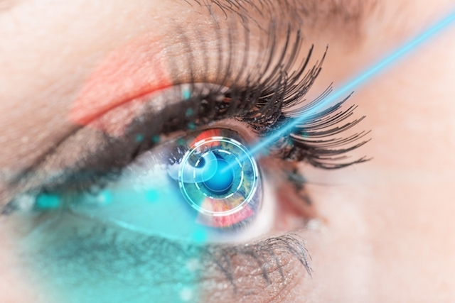 Lasik é uma das técnicas mais utilizadas em cirurgia refrativa – Foto: Divulgação