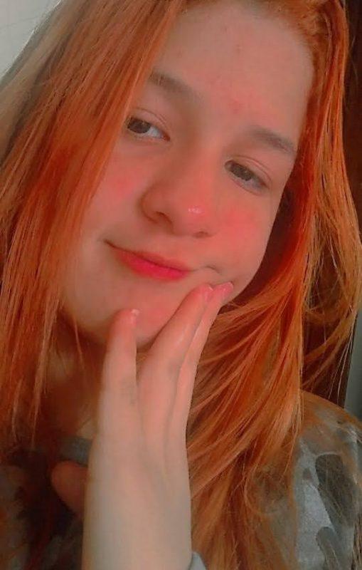 Rebeca Sayuri Albuquerque Minori, de 15 anos, ficou em estado grave após o atropelamento – Foto: Arquivo Pessoal