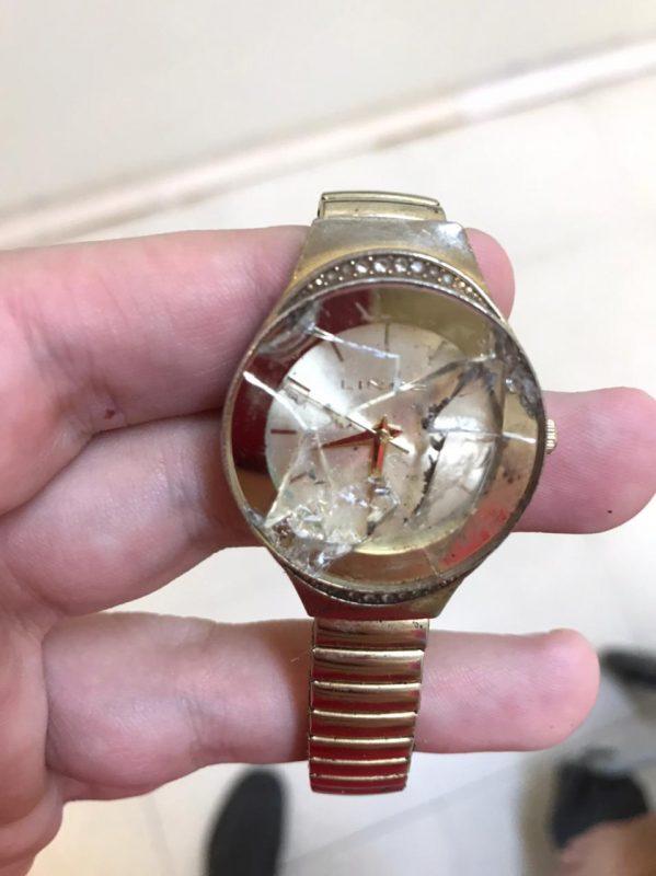 Relógio de Andréa parou no exato momento do acidente – Foto: Arquivo pessoal/ND
