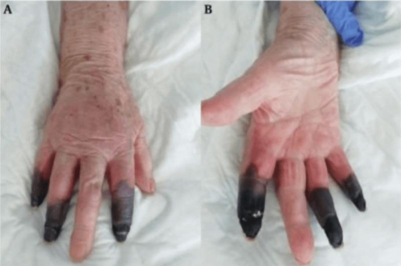 Registro mostra os dedos da paciente necrosadas – Foto: Reprodução