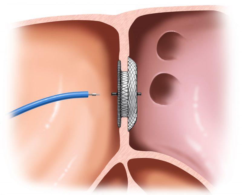 Doença Forame Oral Patente (FOP) exige fechamento entre lado direito e esquerdo do coração – Foto: Divulgação