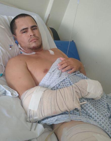 Altevir Alves de Lima, de 30 anos, ficou gravemente ferido após acidente – Foto: Arquivo Pessoal