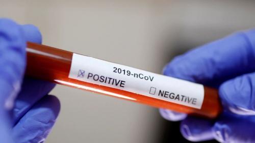Covid-19: SC já registrou mais de 31 mil novos casos em abril – Foto: Reprodução/HCUFU/ND