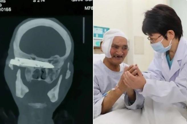 Um paciente idoso passou cerca de 26 anos com a lâmina de uma faca dentro do crânio – Foto: R7/Reprodução/ND