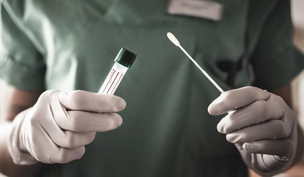 Testes positivos de Covid-19 caem para 11,5% em Chapecó – Foto: Prefeitura de Goiânia/Divulgação/ND