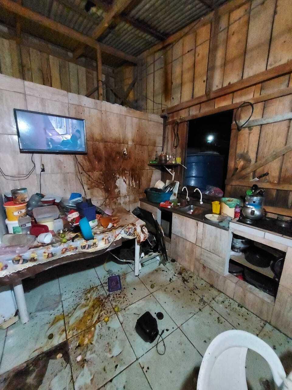 Vítima sofreu queimaduras no rosto e braço - Corpo de Bombeiros Navegantes/Divulgação