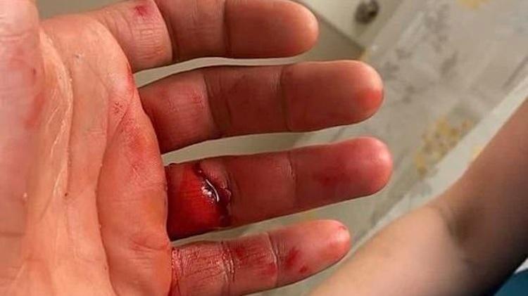 Lutador passou por cirurgia – Foto: Twitter/Reprodução/ND