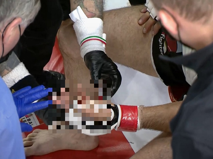 Lutador perdeu dedo da mão durante combate de MMA – Foto: Twitter/Reprodução/ND