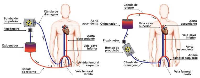 ECMO funciona como um pulmão artificial – Foto: CRBM/Divulgação/ND