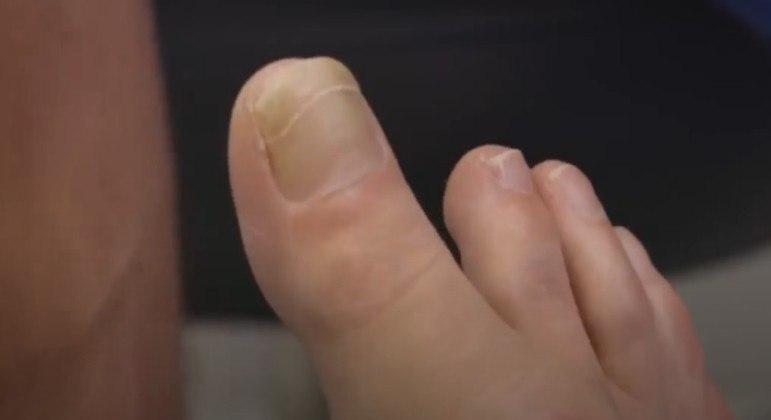 Paciente chocou cirurgião especializado em pés com um dedão extremamente longo e raro – Foto: REPRODUÇÃO/TCL/MY FEET ARE KILLING ME