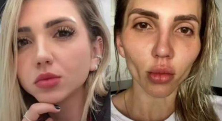 Influenciadora Jéssica Frozza realizou um procedimento para afinar o rosto – Foto: Reprodução