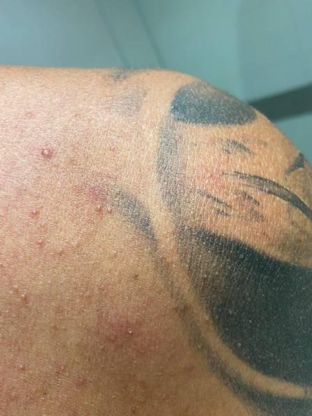 Tom Veiga mostra foto machucado – Foto: Divulgação/ND