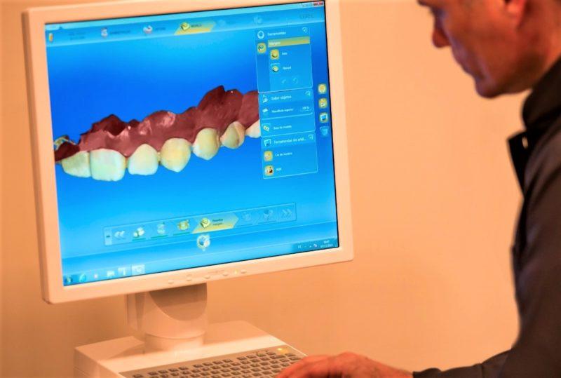 Odontologia digital oferece mais rapidez e segurança em implantes – Foto: Divulgação/Oral Visage