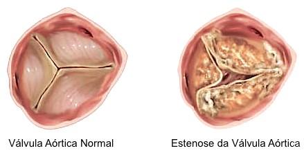 Diferença entre uma válvula saudável e uma com estenose – Foto: Divulgação/Centro Hospitalar de Vila Nova de Gaia