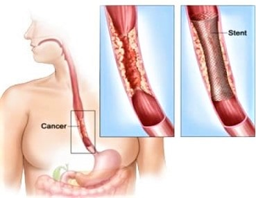 Câncer de esôfago tem tratamento, mas é necessário diagnóstico precoce – Foto: Divulgação