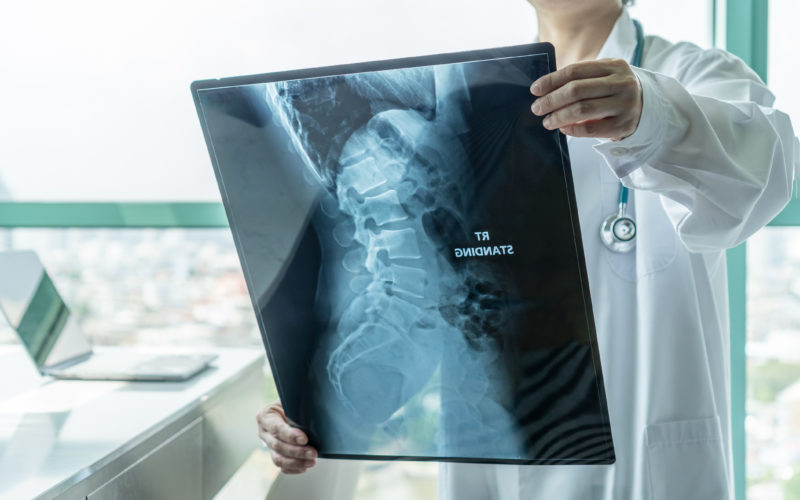 Prevenção da osteoporose é feita por exames sem complexidade e evita lesões – Foto: Getty Images/iStockphoto/ND
