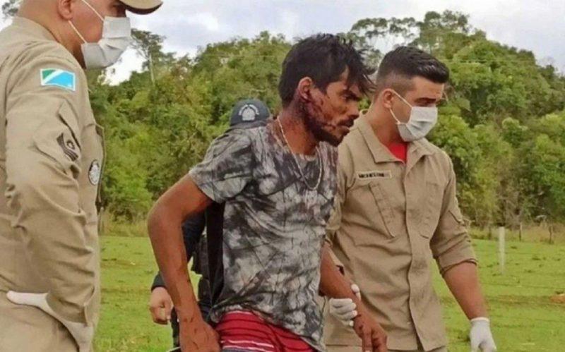 Homem espancado por moradores foi confundido com Lázaro Barbosa – Foto: Reprodução