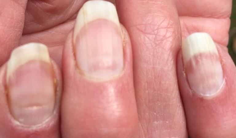 Sinais nas unhas podem identificar se você já teve Covid-19 – Foto: Reprodução
