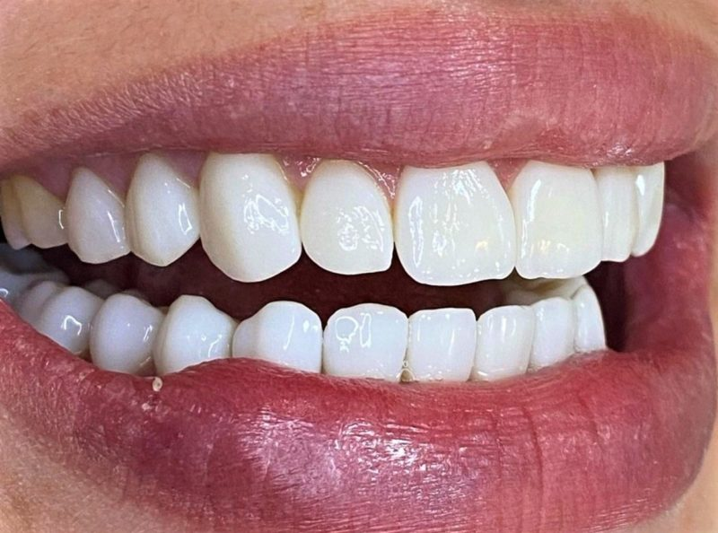 Sonho de ter dentes perfeitos pode ser realizado – Foto: Divulgação Oral Visage