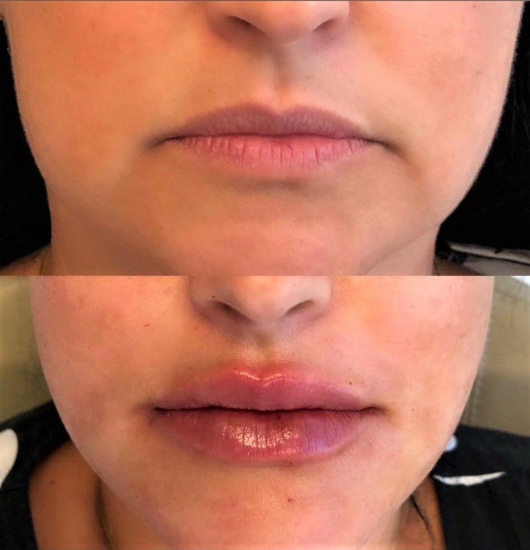 Preenchimento labial é feito em camadas mais superficiais da pele – Foto: Divulgação/Bianchini