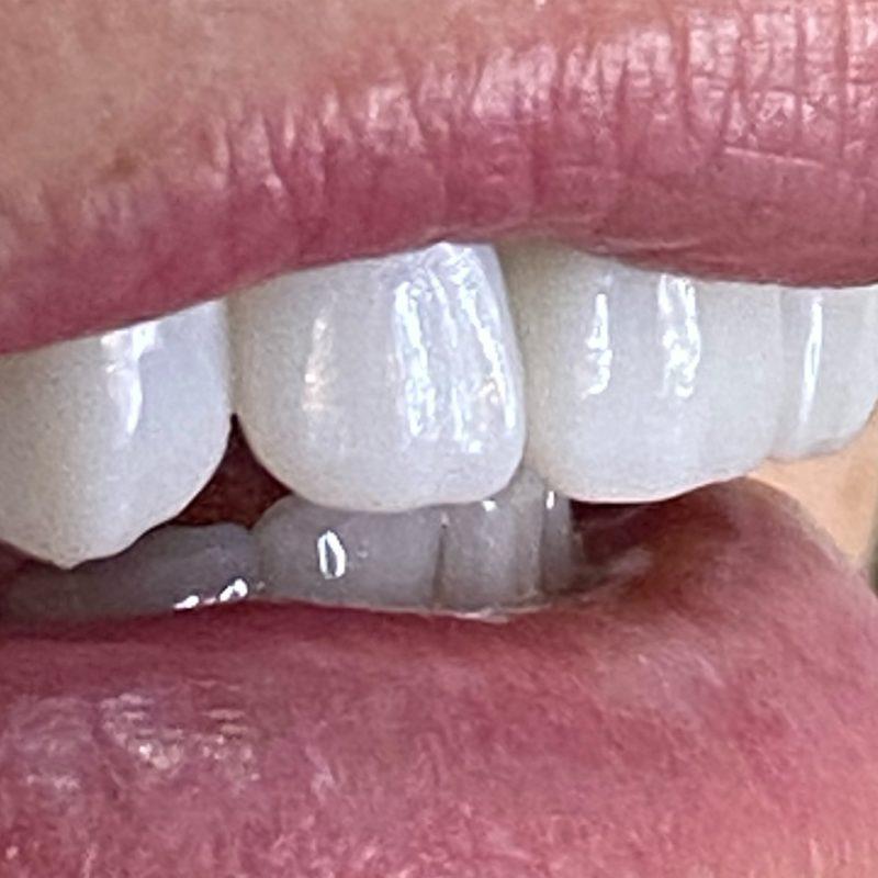 Mais de 400 pessoas já fizeram o procedimento na Oral Visage – Foto: Divulgação Oral Visage