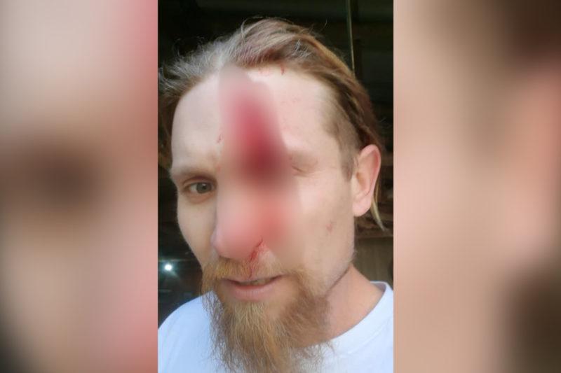 Vereador de Indaial é atingido na cabeça por motosserra – Foto: Arquivo Pessoal/Redes Sociais