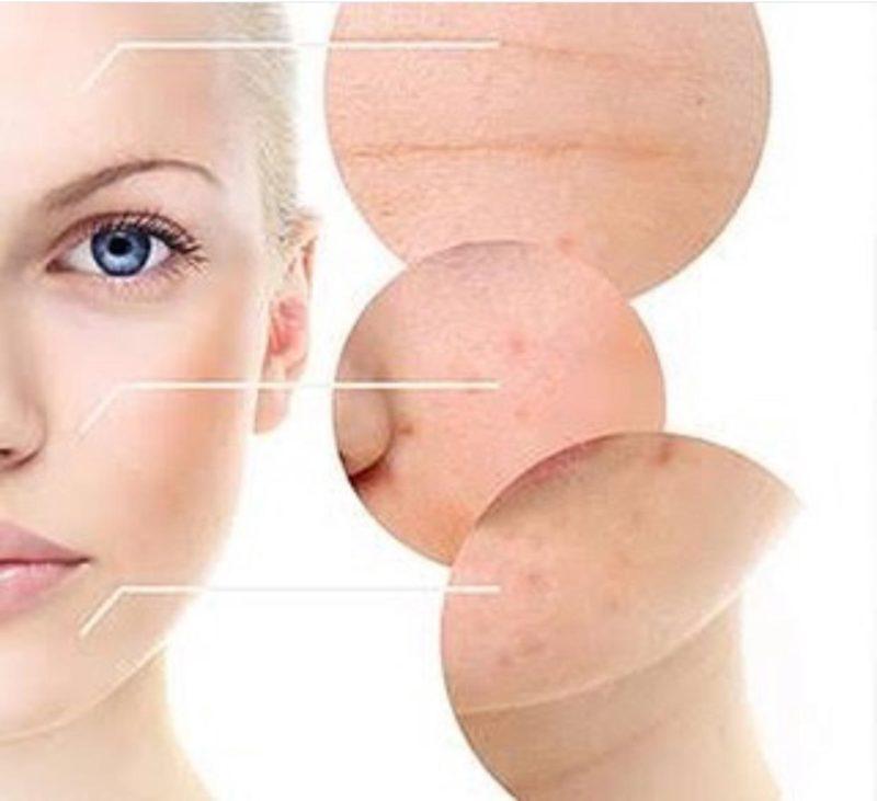 Já ouviram falar em Fisioterapia Dermatofuncional? Confira tudo aqui