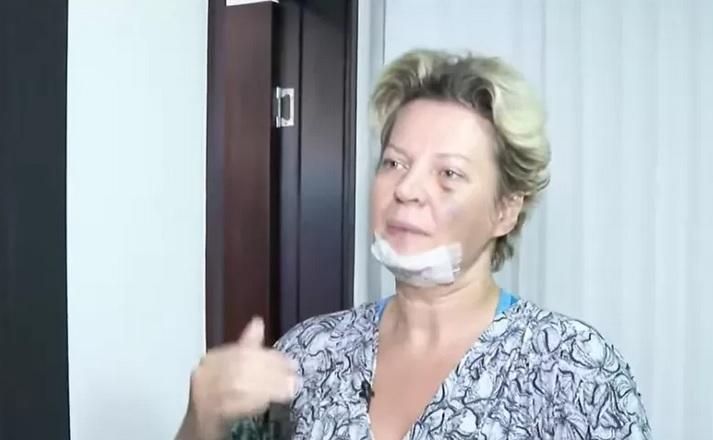 Deputada federal Joice Hasselmann (PSL-SP) diz ter sofrido atentado – Foto: Reprodução/CNN