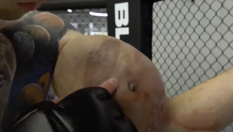 Bíceps de lutador de MMA explodiu durante e corre risco de amputação – Foto: Reprodução
