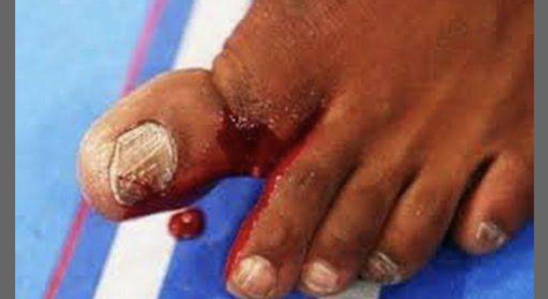 A imagem é forte. O dedão fraturado pertence a Jon Jones, resultado da luta contra Chael Sonnen, em 2013. Apesar da lesão, Jones venceu e manteve o cinturão – Foto: Reprodução