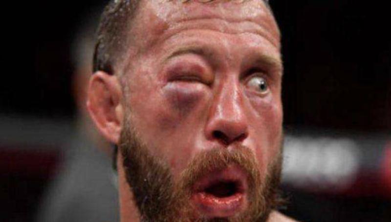 Donald Cerrone não está piscando para você. Trata-se o olho fechado de tanto tomar pancada na derrota para Tony Ferguson, em 20219 – Foto: Reprodução