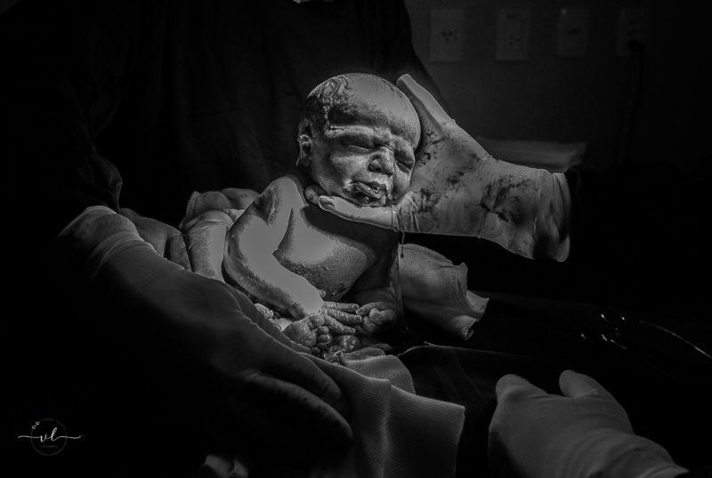 Esta foi a primeira vez que a fotógrafa Vanuza Lolatto presenciou um caso como este – Foto: Vanuza Lolatto/ND